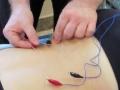 Acupuncture Markham-03