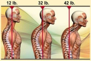 posture, neck pain, shoulder pain, headaches, massage therapy, chiropractic, physiotherapy, Markham, Unionville
